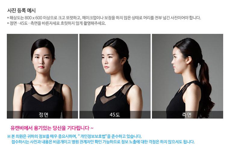 유캔비성형외과피부과 리얼스토리 모델 모집합니다!